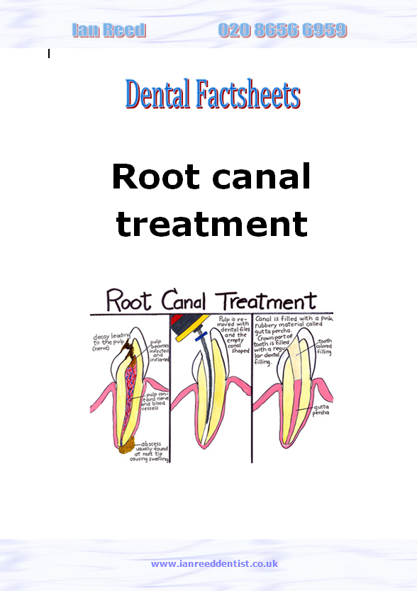Root canal treatment factsheet